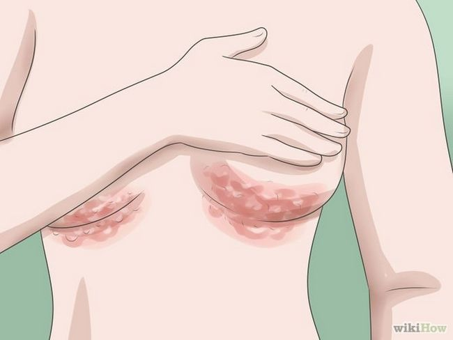 Зображення з назвою Recognize Staph Infection Symptoms Step 11