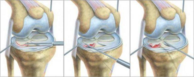 меніск колінного суглоба лікування операція