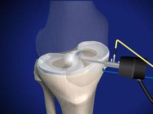 операцію з видалення меніска колінного суглобу