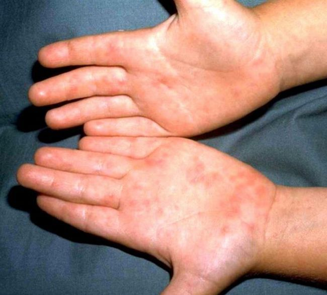 симптоми і лікування ентеровірусної інфекції