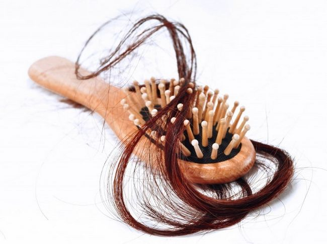 Надмірне випадання волосся при вагітності: норма чи патологія?