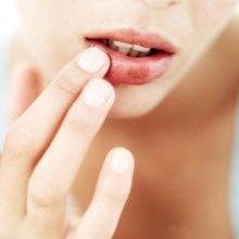 малярія на губах лікування