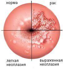 ВПЛ-інфекція