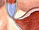 Ахалазії кардії