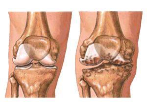 Артроз колінного суглоба (гонартроз)