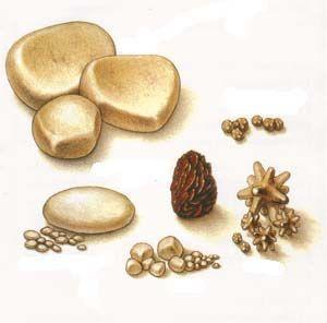 Камені в сечовому міхурі і сечоводі