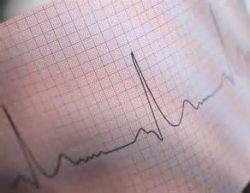 Порушення ритму серця