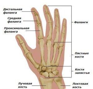 Перелом пальця руки