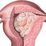 Рак тіла матки