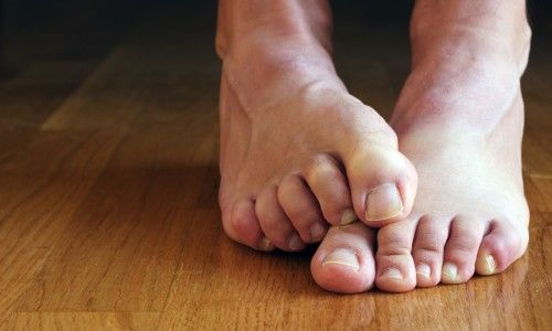 Грибок нігтів на ногах у дитини: особливості та лікування
