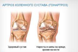 Ефективна фізкультура при артрозі колінного суглоба
