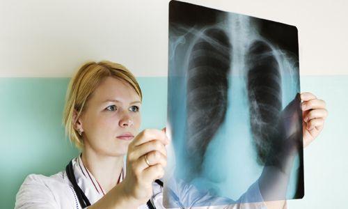 Діагностика саркоїдозу легенів