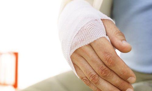 Що таке перелом кисті руки?