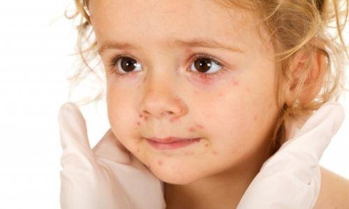 Як протікає герпесная ангіна у дітей