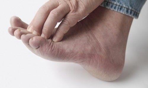 Причини і лікування прищів на ногах у чоловіків